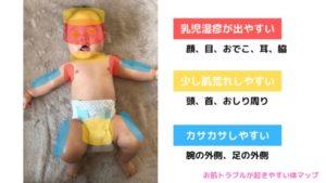 赤ちゃんの乳児湿疹が出やすい場所